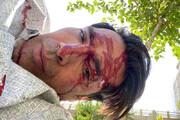 امیرحسین صادقی از تصادف خونینش میگوید