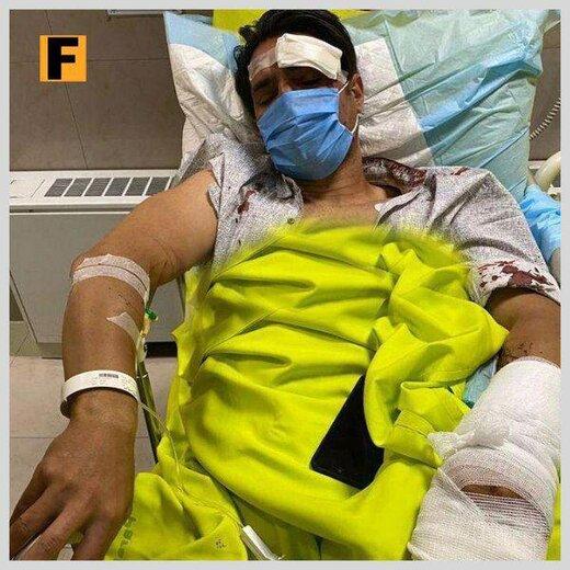صورت خون آلود امیرحسین صادقی پس از تصادف وحشتناک با موتور