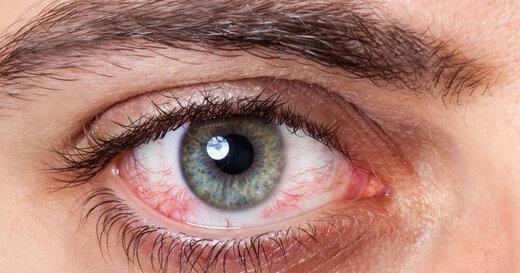 خطر ویروس کرونا برای چشمها چیست؟