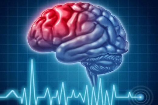 امروز روز جهانی سکته مغزی است؛ علائم مهم سکته کدام است؟
