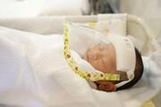 ابتلای نوزاد ۶ ماهه به یک بیماری دائمی پس از ابتلا به کرونا