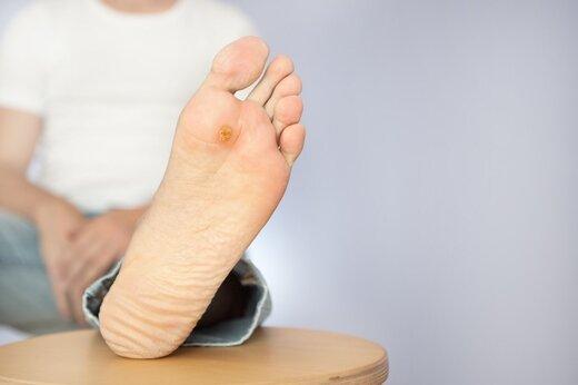 ارتقای کیفیت زندگی مبتلایان به زخمهای مزمن