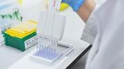 واکسن ایرانی کرونا در کدام مرحله است؟