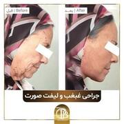 جراحی زیبایی چیست و چه جراحی هایی جز جراحی زیبایی محسوب می شوند ؟