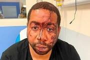 ببینید | لحظه حمله وحشیانه و نژادپرستانه پلیس فرانسه به یک هنرمند رنگینپوست