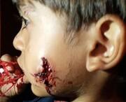️رودخانه شور مقصر حمله سگها به کودکان شد! /کودکی که سگها صورتش را دریدند