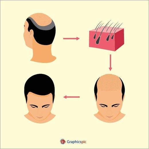 کاشت مو و ترمیم مو چه تفاوتهایی دارند؟
