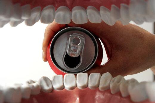 ببینید | اثر نوشابه بر روی دندان فقط در ۵ روز