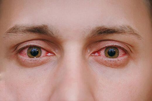 ببینید   اختلالاتی که نگاه کردن مداوم به تلفن همراه در بدن انسان ایجاد میکند
