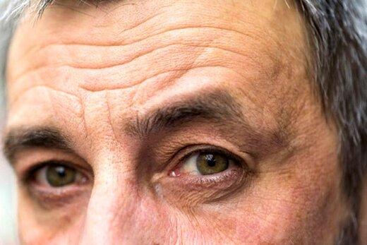 پاسخ به ۴ پرسش رایج درباره پیری پوست