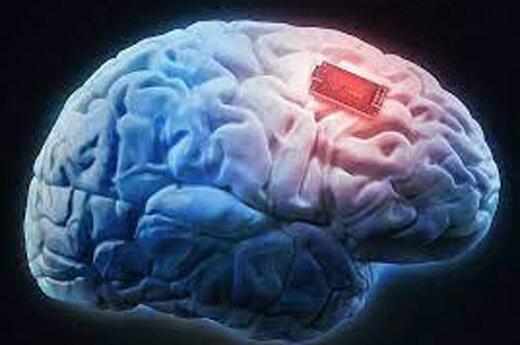 ببینید |  میمونی که با کمک تراشه های کاشته شده در مغزش، بازی کامپیوتری می کند