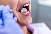 اینفوگرافیک | چند باور اشتباه درباره بهداشت دهان و دندان