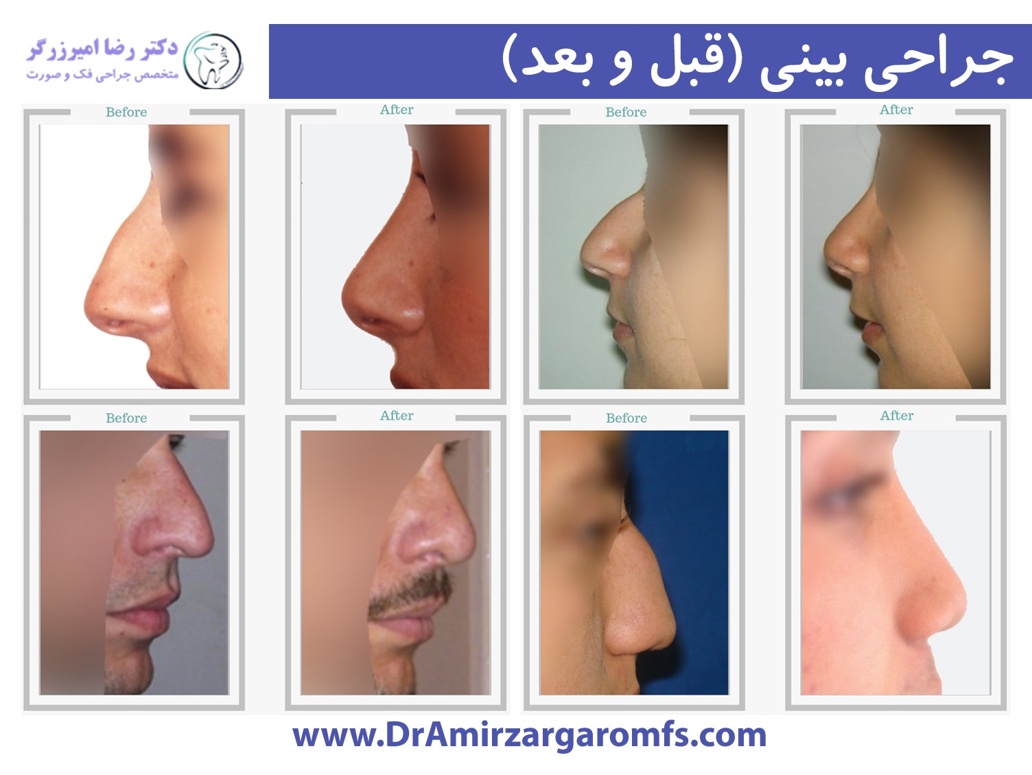 آشنایی با ساختار بینی و جراحی بینی
