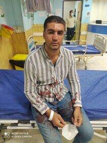 حمله راهزنان مسلح به قهرمان بوکس کشور/ عکس