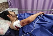 شوکِ ناشی از ۲۱ ضربه چاقو که بر بدن عکاس ایرانی وارد آمد