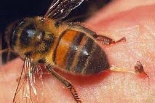 ببینید | روش عجیب درمان بیماریها با نیش زنبور