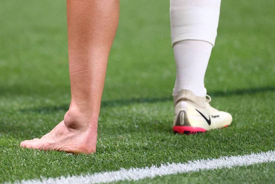 مصدومیت دلخراش بازیکن رئال مادرید در المپیک/عکس