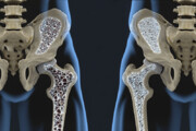 ببینید | ۹ توصیه غذایی ساده برای جلوگیری از ابتلا به پوکی استخوان