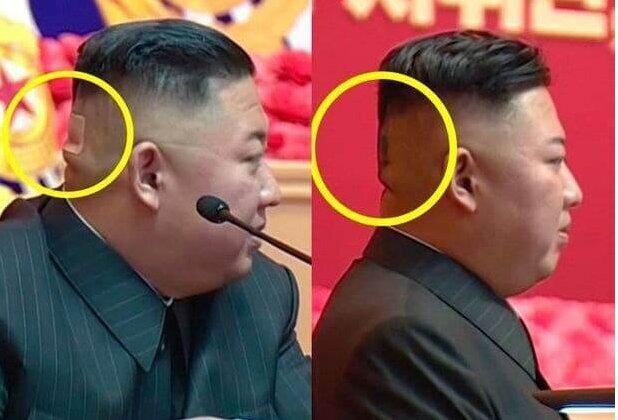 انتشار تصویری جدید از رهبر کرهشمالی با سر بانداژ شده/عکس
