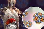 اینفوگرافیک   علائم هپاتیت و راههای انتقال آن