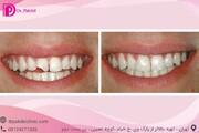 کامپوزیت دندان چیست؟ تفاوت کامپوزیت و لامینیت
