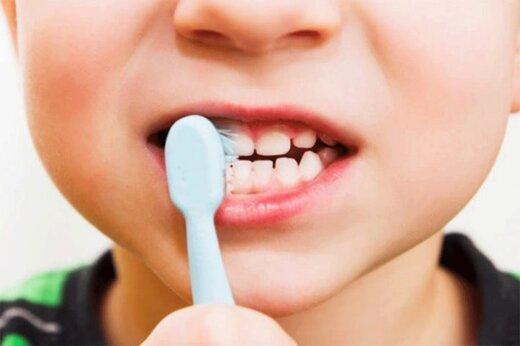 ببینید   راههای حفظ سلامت دندان کودکان