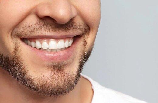 با این سه روش دندانهای سفیدتری داشته باشید