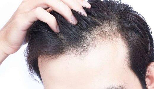 روشهایی برای جلوگیری از ریزش موی سر