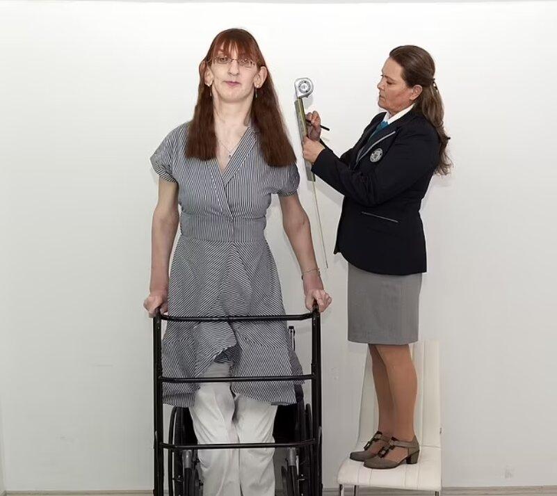 زن 24 ساله اهل ترکیه قدبلندترین زن جهان شناخته شد/ تصویر