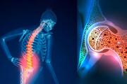 اینفوگرافیک | عادتهایی که باعث پوکی استخوان میشود